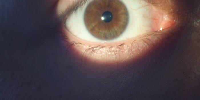 Irisdiagnostik Naturheilpraxis Tina Ohl Heilpraktikerin Friedberg